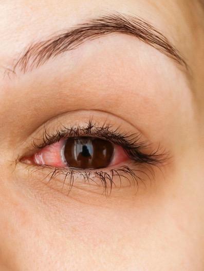 allergy-symptoms